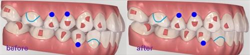 歯と歯の間もお掃除していますか?