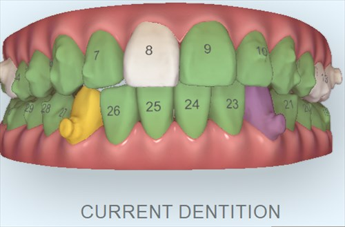 ちゃんと歯は動いてる?治療経過の確認2