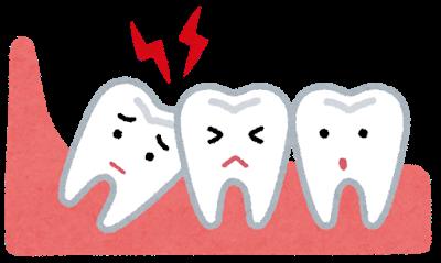親知らずと歯並びの関係について