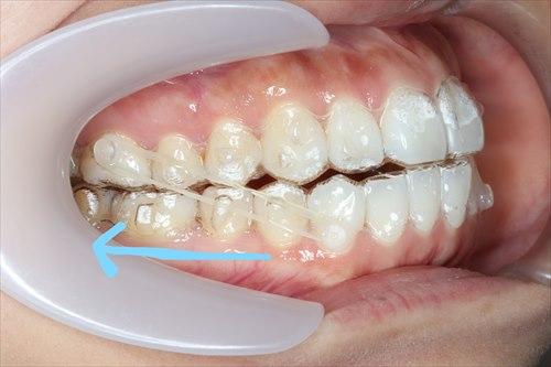 ゴムをかけて歯を引っ張る??