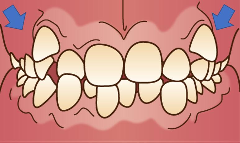 どうして八重歯になるの?八重歯は歯の生える順番と関係しています!