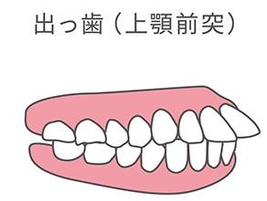 出っ歯(上顎前突)で問題になることと矯正治療