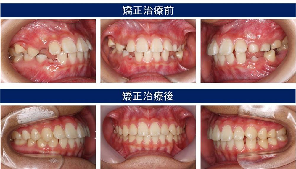 子供の出っ歯の症状について