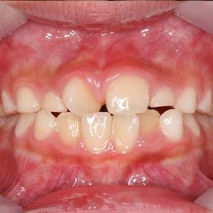 子供の八重歯・叢生
