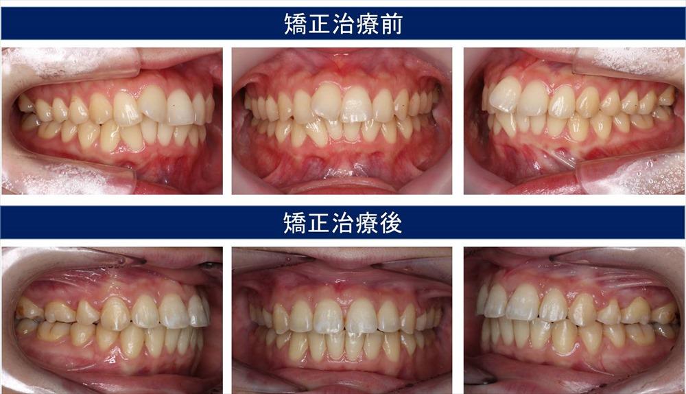 出っ歯(上顎前突)の症状について