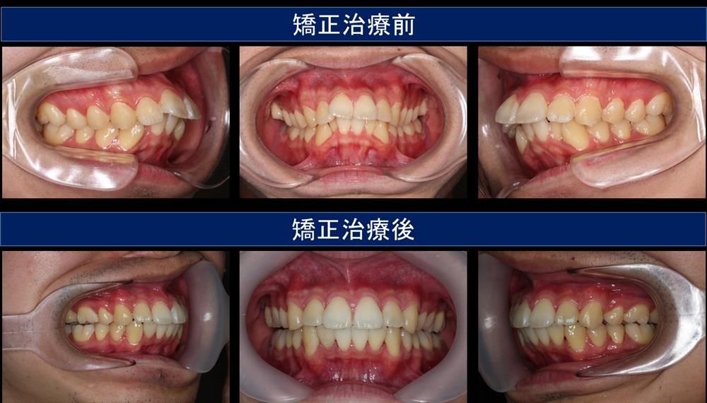 出っ歯(上顎前突)の治療例