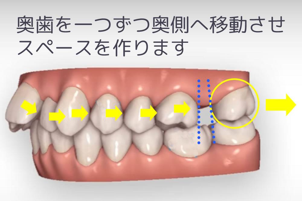 歯を遠心移動させる