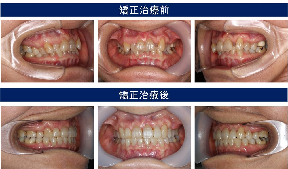 過蓋咬合(深い咬み合わせ)の治療例