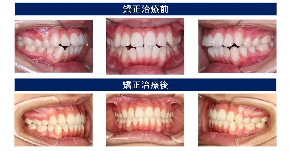 開咬(前歯が開く)の症状について