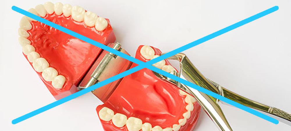 矯正治療で歯を抜くべきなのか