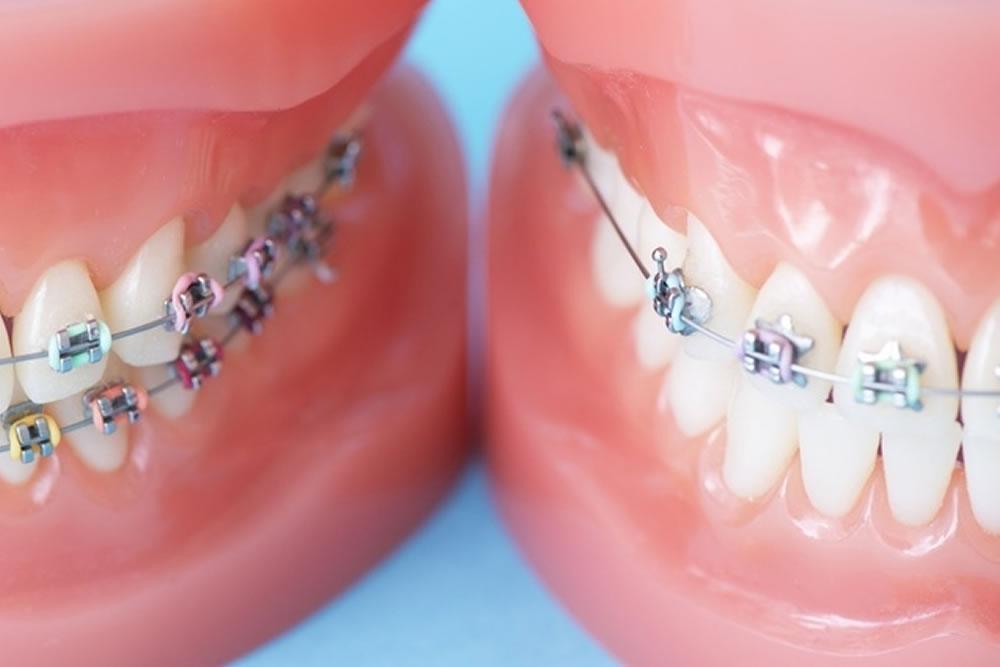 矯正治療中の歯のグラグラ