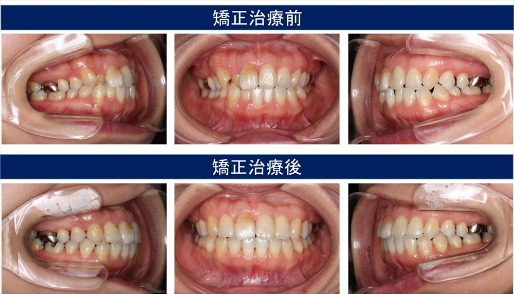 八重歯・叢生(凸凹の歯並び)の症状について