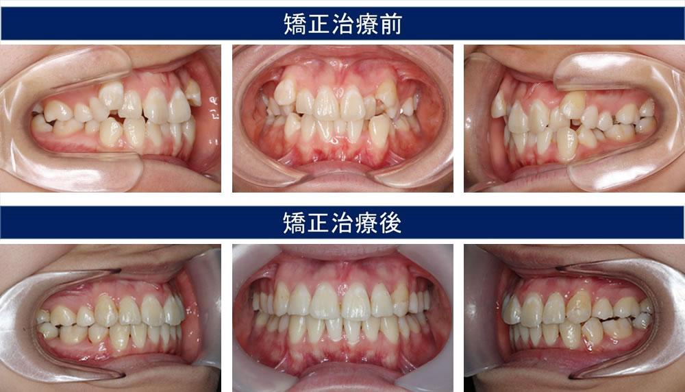 八重歯・叢生(凸凹の歯並び)の治療例