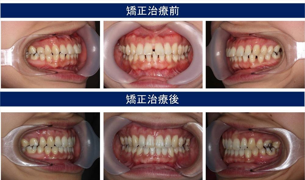 すきっ歯(空隙歯列)の症状について