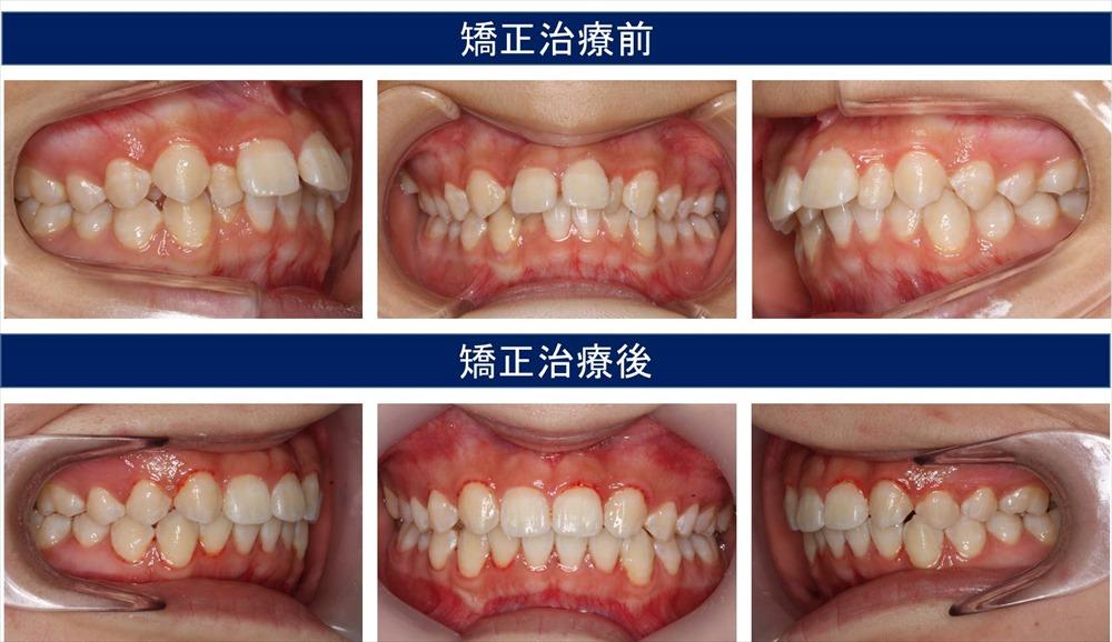 すきっ歯(空隙歯列)の治療例